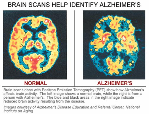Brain scans for Alzheimer's Disease